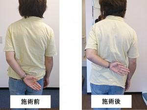 四十肩・五十肩 改善例 後ろに手を回す