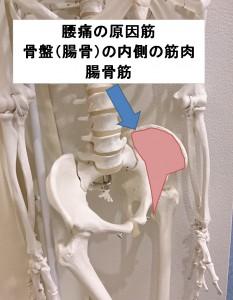 腰痛の原因筋 腸骨筋