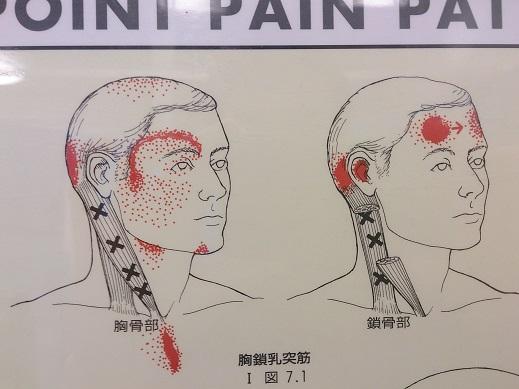 前頭部の頭痛1