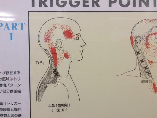 側頭部の頭痛